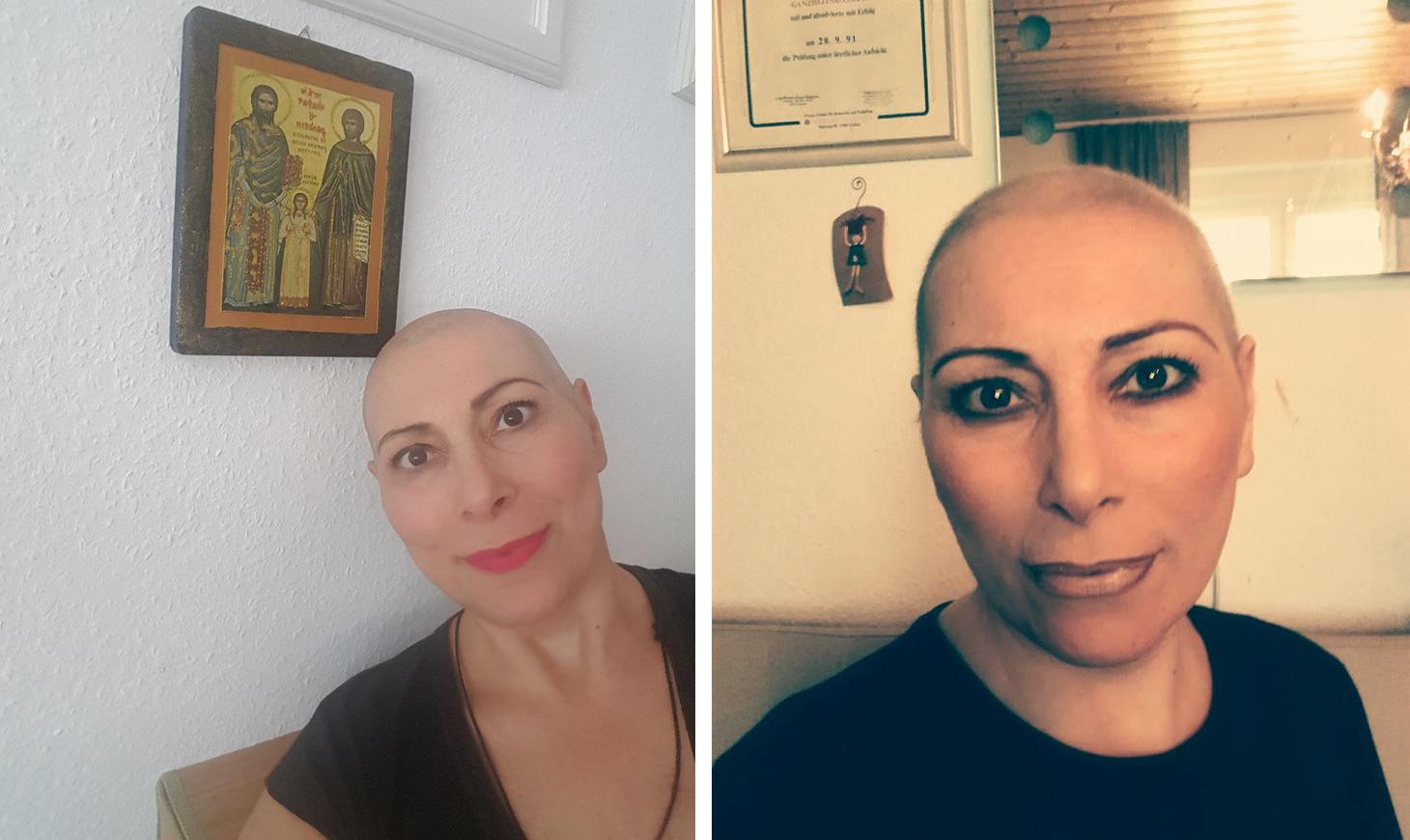 Μαθήματα ζωής απο μία καρκινοπαθή Ελληνίδα απο τη Φρανγκφούρτη