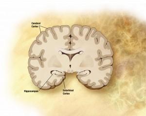 Νέα πειραματική θεραπεία υπόσχεται να καταπολεμήσει τη νόσο Αλτσχάιμερ