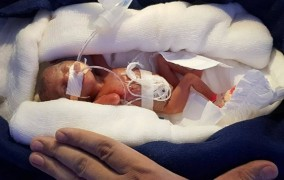 Θαύμα της φύσης: Γεννήθηκε μωρό 400 γραμμαρίων σε μέγεθος... στυλό και επιβίωσε!
